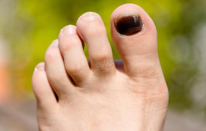 Móng chân tím đen là dấu hiệu cảnh báo sức khoẻ mà bạn không nên xem thường - Ảnh 3.