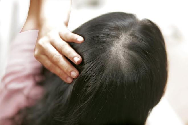 Bắt bệnh qua 5 dấu hiệu bất thường rất dễ nhận biết ngay trên mái tóc của bạn - ảnh 1