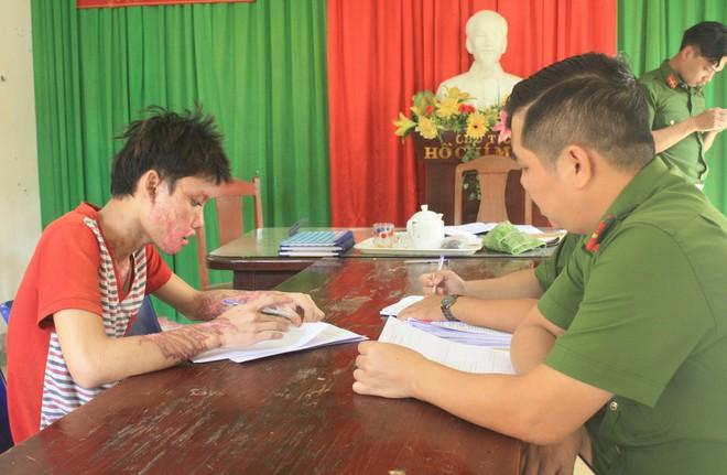 Đà Nẵng: Ghen tuông, nam thanh niên 20 tuổi tạt axít vào người yêu rồi tự sát - ảnh 1