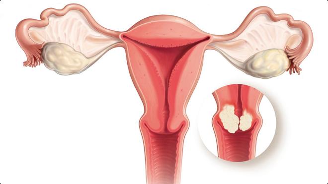 Tiêm phòng ngừa ung thư cổ tử cung: những thông tin nhất định con gái phải biết - Ảnh 1.