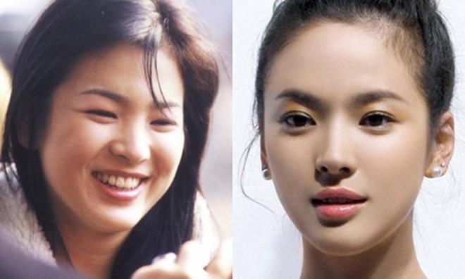 2 quốc bảo nhan sắc Hàn Quốc Song Hye Kyo và Son Ye Jin: Đều đẹp, siêu giàu, nhưng tình duyên lại quá khác biệt - Ảnh 4.