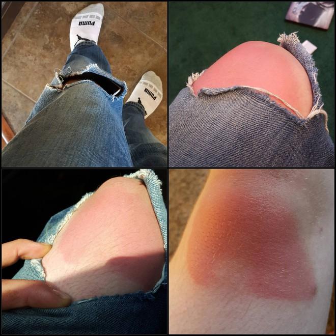 Khi bạn mê jeans rách đến bất chấp cả trời nắng to, rất có thể bạn sẽ khiến mình trông như thế này - ảnh 5