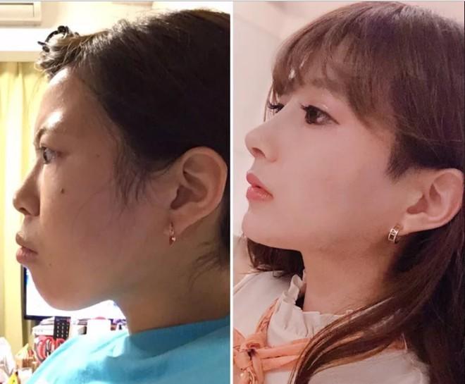 Khoe ảnh PTTM thành công, thiếu nữ Nhật được dân tình nhận xét: Trông như vừa đầu thai kiếp khác! - ảnh 4