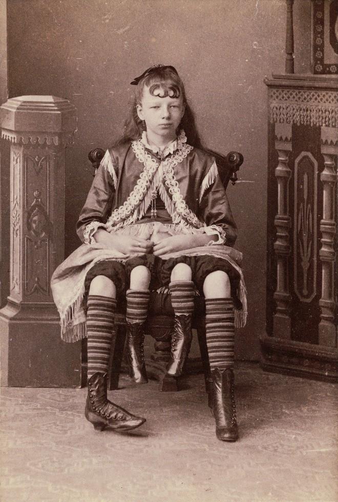 Cuộc đời người phụ nữ 4 chân: 13 tuổi làm ngôi sao gánh xiếc, sống đời sung túc với nghề triển lãm bản thân 1