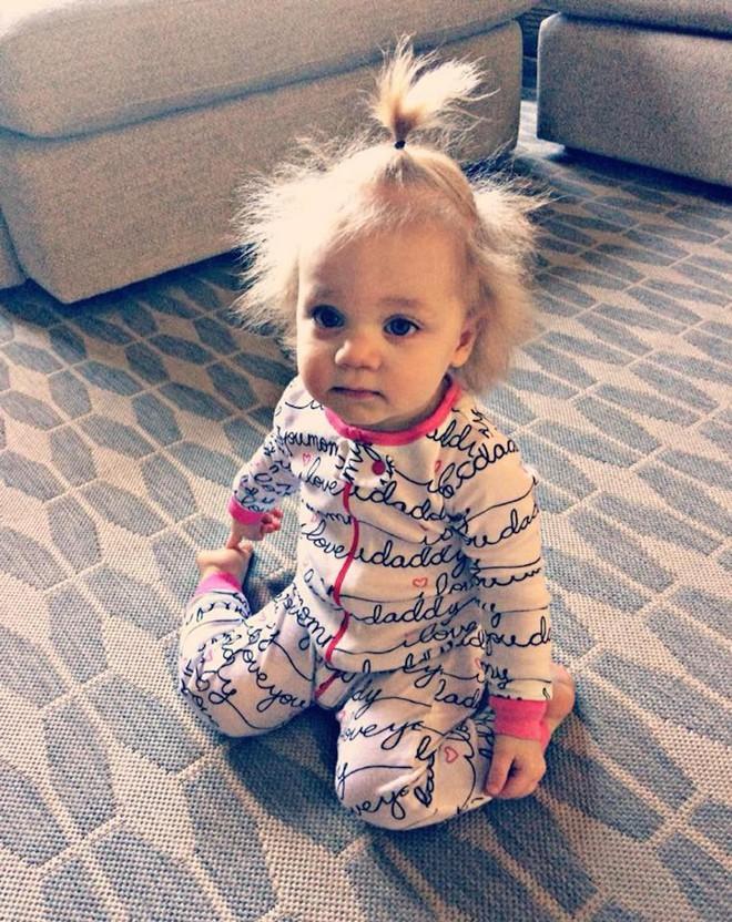 Hãy hạnh phúc với mái tóc của mình dù nó bết, vì cô bé này tóc yếu đến mức không chải nổi cơ - ảnh 4