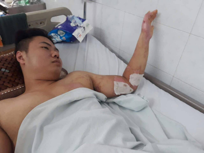 Hành trình phục hồi từ cơ thể bị bỏng nặng 40% đến body cơ bắp khỏe mạnh của chàng trai Thái Nguyên - ảnh 4