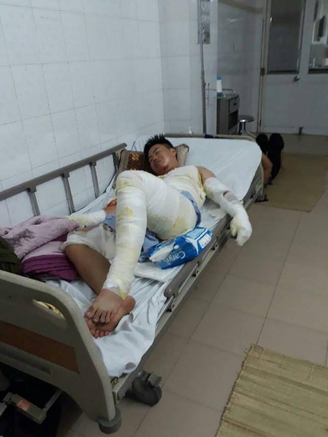 Hành trình phục hồi từ cơ thể bị bỏng nặng 40% đến body cơ bắp khỏe mạnh của chàng trai Thái Nguyên - ảnh 3