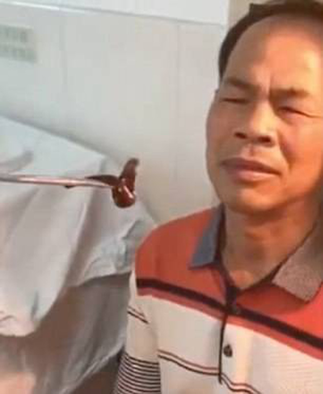 Trung Quốc: Ông chú đi khám mũi đau lâu ngày không khỏi, bác sĩ lôi ra nguyên con đỉa lớn đang 'ở nhờ' bên trong - ảnh 1