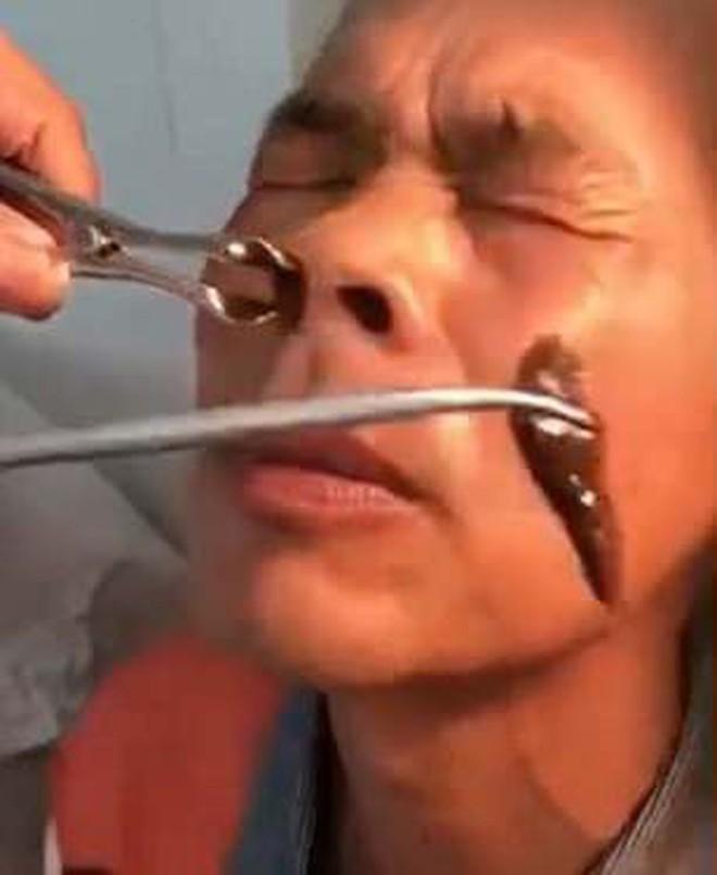 Trung Quốc: Ông chú đi khám mũi đau lâu ngày không khỏi, bác sĩ lôi ra nguyên con đỉa lớn đang 'ở nhờ' bên trong - ảnh 3