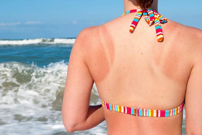 5 căn bệnh ngoài da cực dễ mắc phải trong mùa hè mà bạn không nên chủ quan xem thường - Ảnh 2.