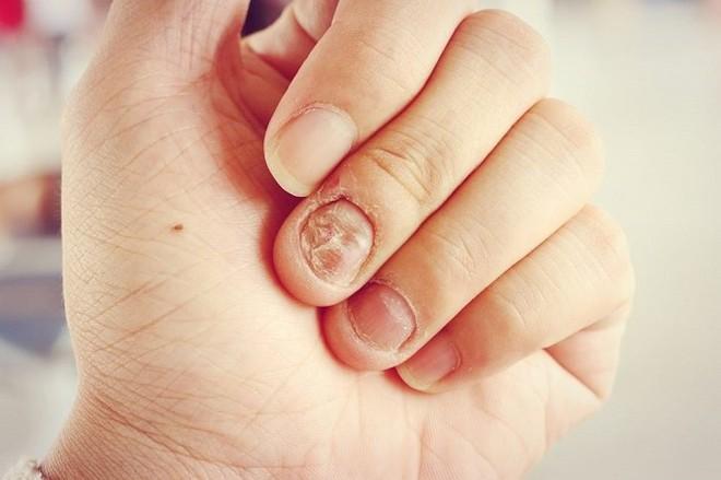 Đừng chủ quan, thói quen cắn móng tay có thể gây ra những hậu quả khôn lường cho sức khỏe mà bạn không ngờ tới - ảnh 3