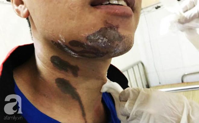 TP.HCM: Để nước thông bồn cầu bắn vào người, nam nhân viên bị hoại tử cơ thể - ảnh 2