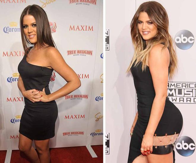 Vòng 3 trái ngược của Kendall Jenner và chị gái: Người vừa vặn tự nhiên, kẻ bơm to đến mức khác thường - ảnh 10