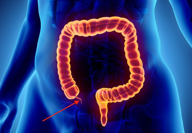 Những thông tin bạn cần hiểu rõ về căn bệnh đường ruột có thể gặp phải bất cứ lúc nào - Ảnh 1.