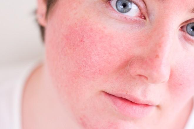 Nếu xuất hiện 1 trong 7 dấu hiệu này, bạn nên dừng sản phẩm chăm sóc da đang dùng ngay lập tức - ảnh 1