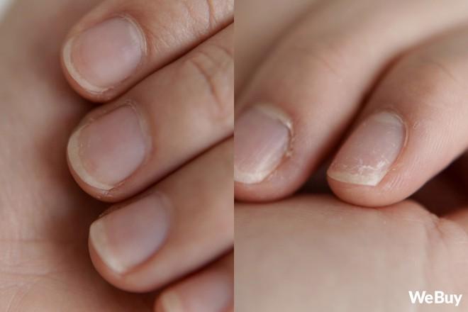 Thanh niên mua mút rửa bát thần kỳ quảng cáo trên mạng, ngờ đâu rửa xong bát đũa đi luôn bộ móng tay - Ảnh 8.
