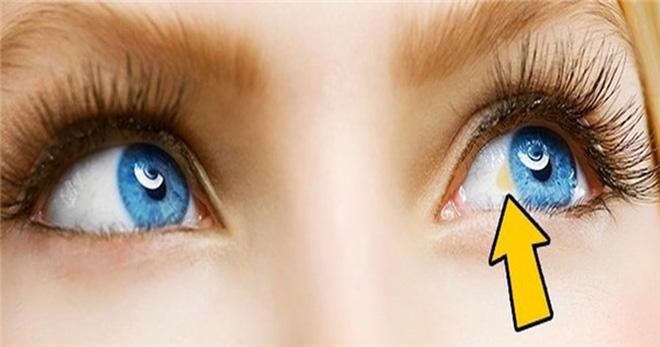 Cẩn thận nếu thấy mắt gặp phải những vấn đề bất thường này, đặc biệt là cái số 3 - Ảnh 1.