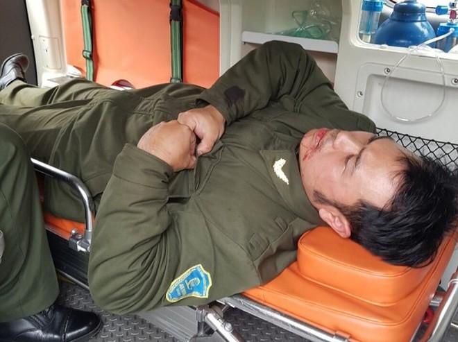 Cò taxi đánh gãy răng nhân viên an ninh sân bay Nội Bài: Xác định danh tính tên côn đồ bỏ trốn - ảnh 1