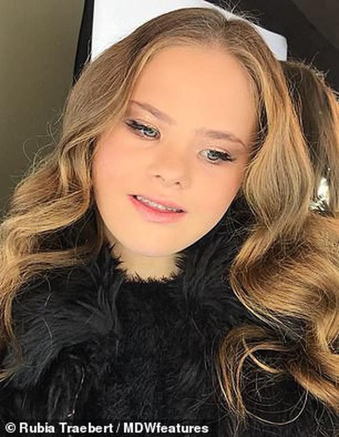 Câu chuyện kỳ diệu của người mẫu 15 tuổi mắc hội chứng Down với 50 nghìn lượt follow trên Instagram - ảnh 3