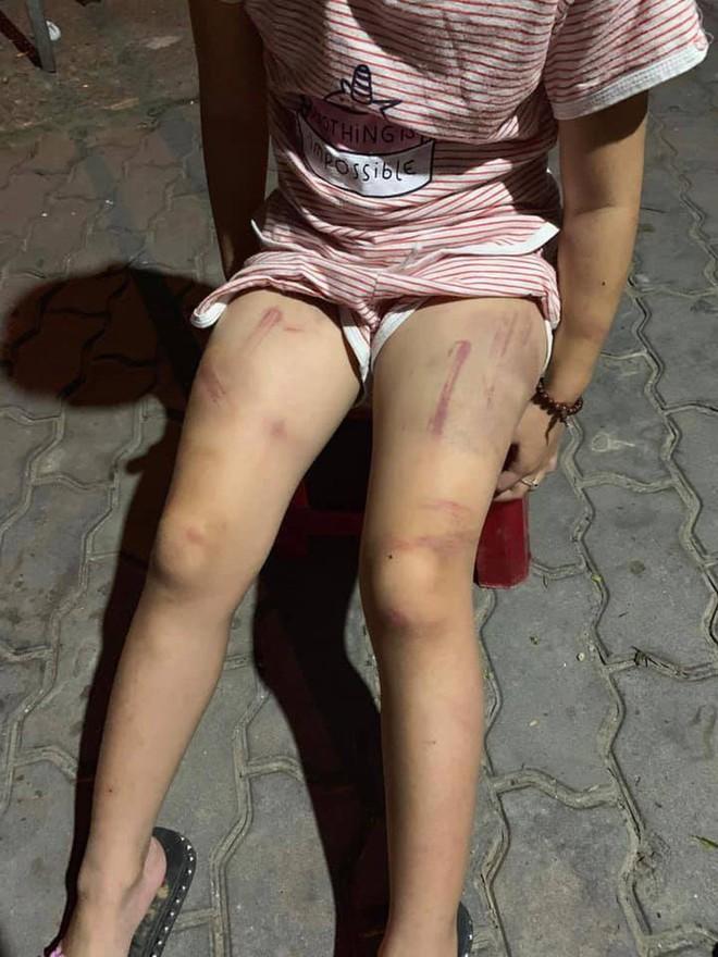 Xót xa bé gái lớp 1 bị bà cố nội đánh bầm tím khắp cơ thể - ảnh 4
