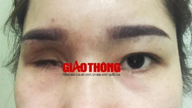 Bắc Giang: Nâng mũi tại cơ sở làm đẹp, cô gái bị mù vĩnh viễn - ảnh 3