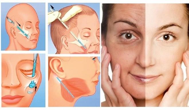 Tử vong sau khi căng da mặt vì sốc phản vệ: nguyên nhân và những điều cần biết để tránh gặp trường hợp tương tự - ảnh 1