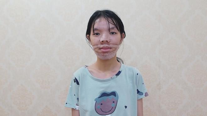 Từng bị đùa cợt là đồ con hoang lại còn hô vẩu, cô gái 19 tuổi lột xác ngoạn mục sau phẫu thuật thẩm mỹ - ảnh 3