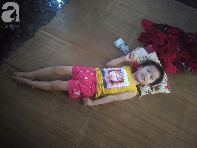 Bi kịch cha mẹ ly hôn vì sinh con tật nguyền, bé gái 5 tuổi bị bại não sống côi cút bên bà nội già yếu - ảnh 2