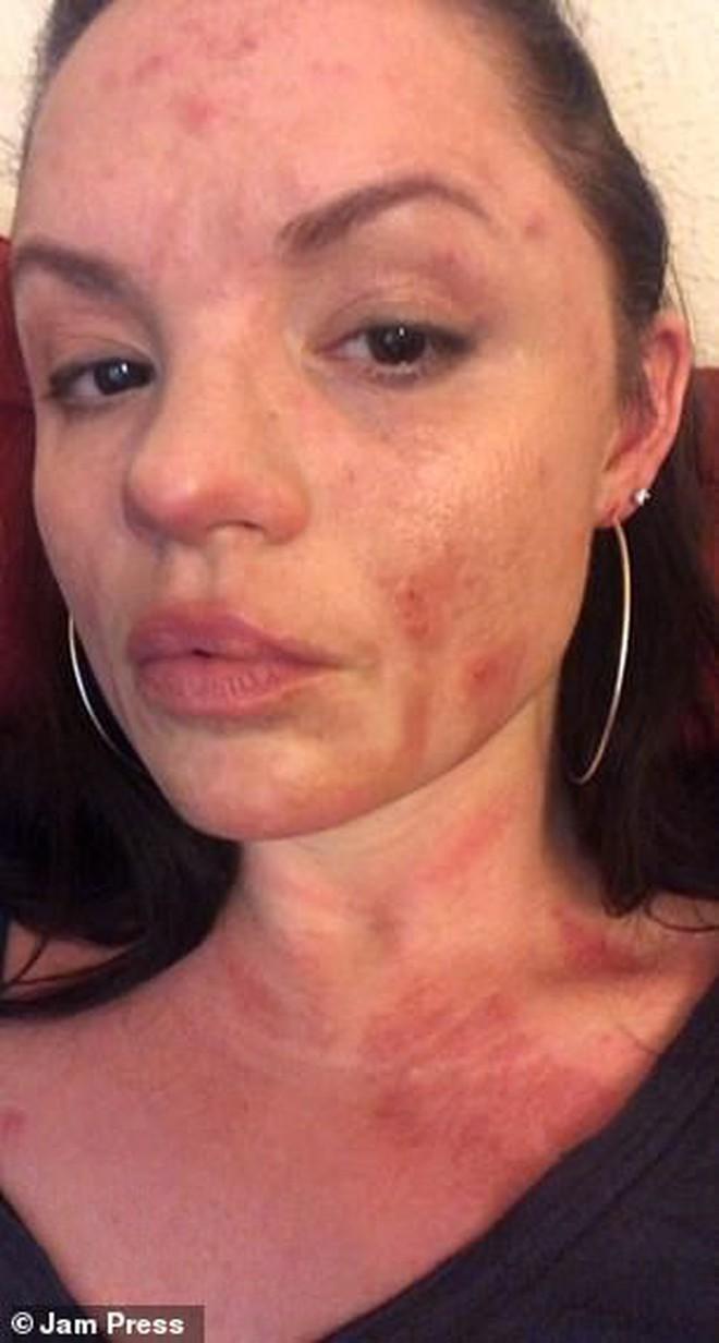 Mở tiệc nướng tại nhà, người phụ nữ ở Mỹ bị bỏng khô cấp độ nặng phải ghép da toàn thân - ảnh 7
