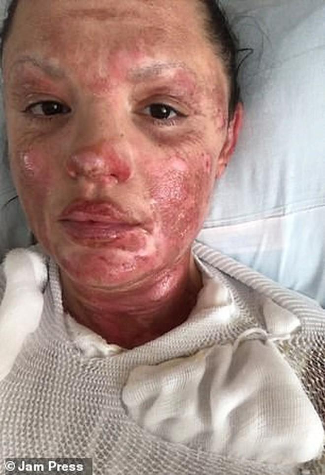 Mở tiệc nướng tại nhà, người phụ nữ ở Mỹ bị bỏng khô cấp độ nặng phải ghép da toàn thân - ảnh 6