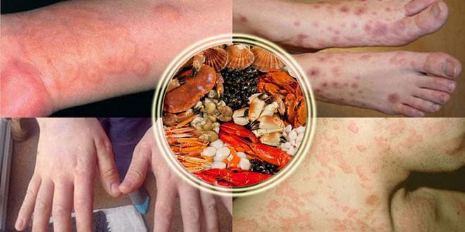 Chi Pu bị dị ứng hải sản ở Nhật khiến da mẩn ngứa, bạn cũng cần lưu ý khi ăn món này - ảnh 8
