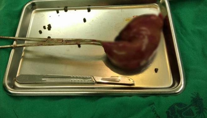 Lấy ra 800 viên ngọc đen giống như hạt trân châu từ túi mật của bệnh nhân - ảnh 2