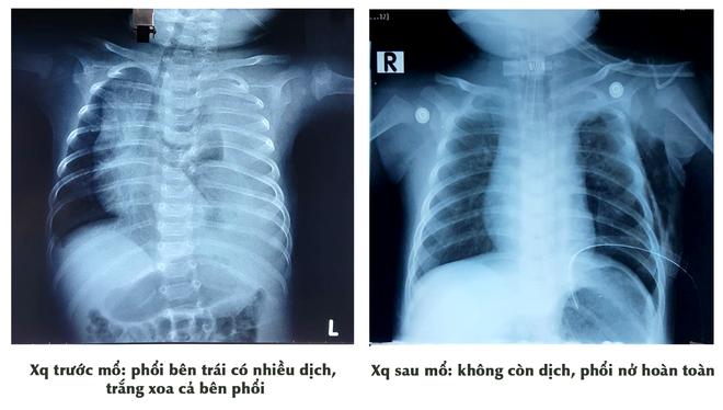 Bé trai 3 tháng tuổi bị tràn dịch màng phổi được các bác sĩ phẫu thuật nội soi thắt ống ngực, cứu sống một cách thần kỳ - Ảnh 2.