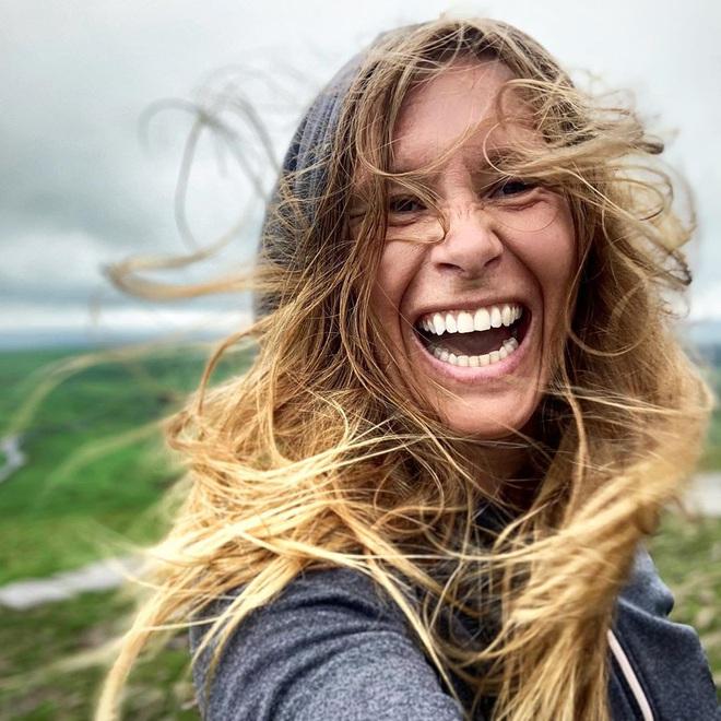 Nữ blogger người Anh chia sẻ chế độ ăn thuần chay đã giúp cô chữa khỏi bệnh vẩy nến - Ảnh 3.