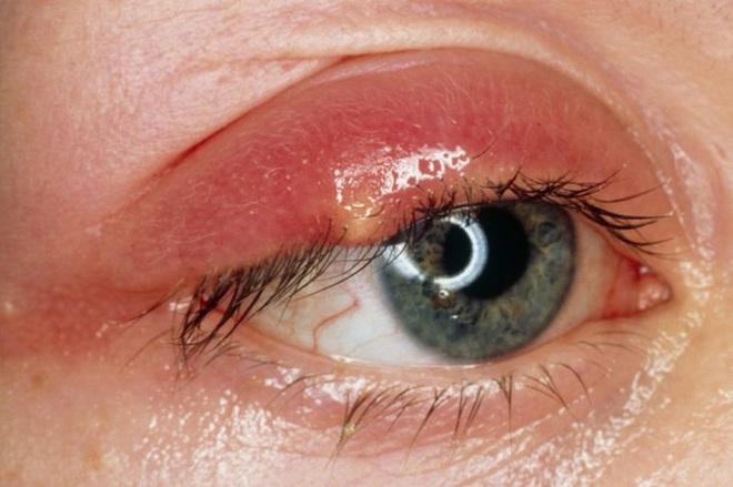 Mụn nổi ở mí mắt trên: dấu hiệu và cách xử lý để bạn bớt cảm thấy khó chịu - ảnh 1
