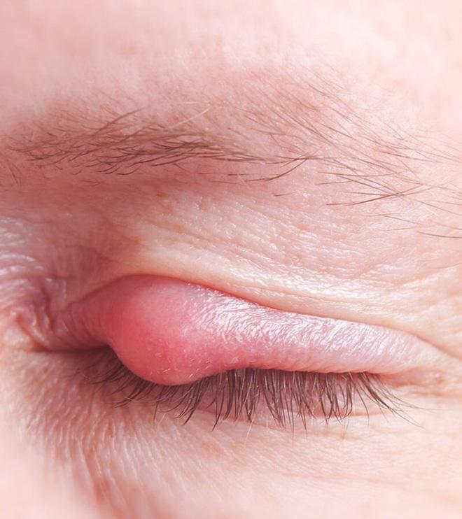 Mụn nổi ở mí mắt trên: dấu hiệu và cách xử lý để bạn bớt cảm thấy khó chịu - ảnh 3