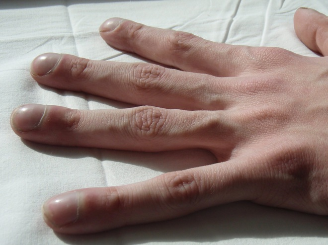 4 dấu hiệu dễ thấy trên bàn tay và bàn chân lại ngầm cảnh báo bệnh ung thư ác tính mà nhiều người không biết - ảnh 4