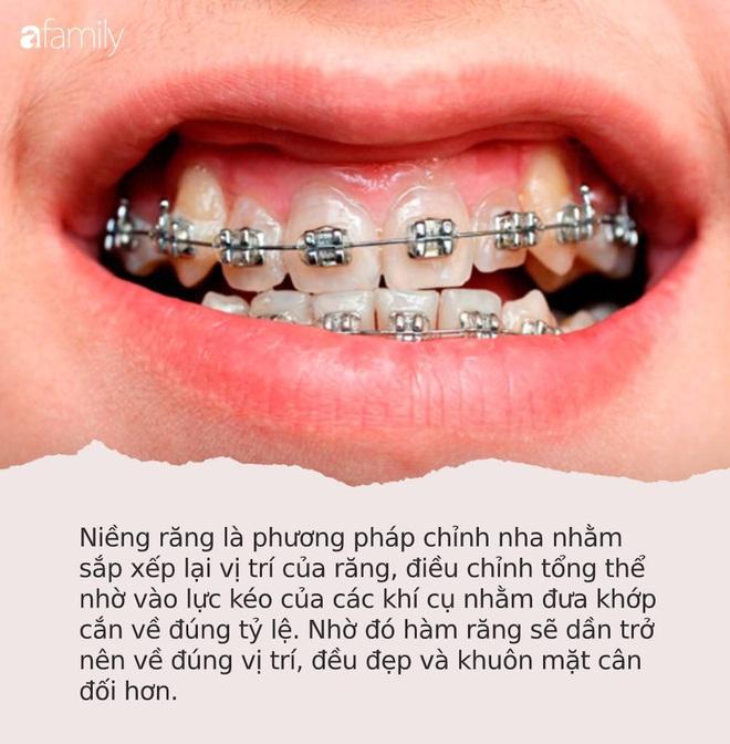 """Loạt sao chứng minh sức mạnh vi diệu của niềng răng và thời điểm vàng để bạn """"cứu vãn"""" nhan sắc nhờ chỉnh nha - ảnh 9"""
