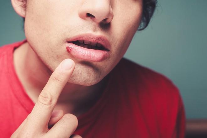 Chăm dưỡng môi nhưng đôi môi vẫn khô nứt, bong tróc thì nguyên nhân có thể là do một vài vấn đề sau - Ảnh 4.