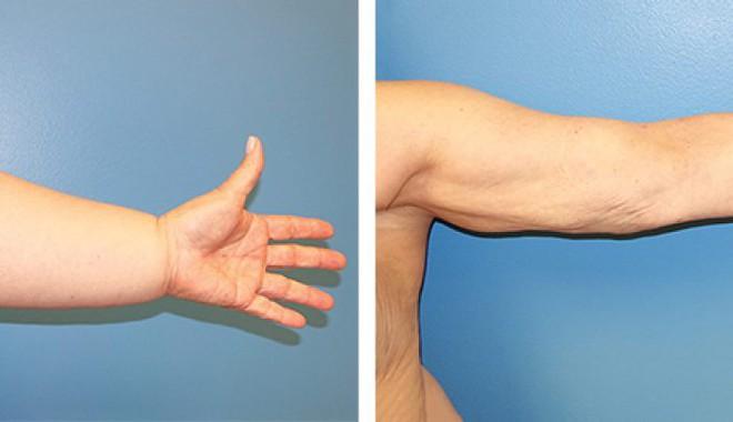 Thấy da ngón tay nhăn nheo có thể là do một trong các vấn đề sức khỏe sau - ảnh 5