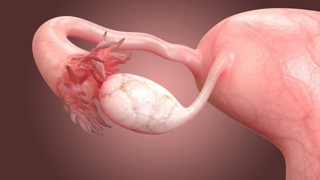 Đau bụng dữ dội suốt 3 ngày, cô gái trẻ đi khám mới biết mình bị xoắn buồng trứng - ảnh 3