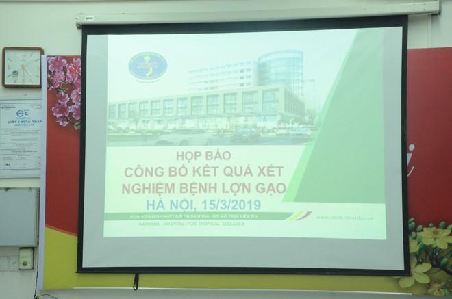 Họp báo công bố kết quả vụ gần 400 học sinh ở Bắc Ninh nghi bị nhiễm khuẩn ấu trùng sán lợn phải xuống Hà Nội khám - Ảnh 1.
