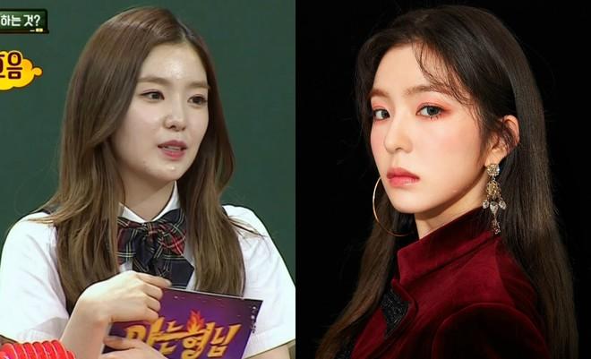 Makeup quá nhiều, loạt idol Hàn cũng khốn khổ vì mụn nhọt tùm lum - ảnh 3