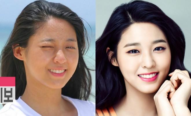 Makeup quá nhiều, loạt idol Hàn cũng khốn khổ vì mụn nhọt tùm lum - ảnh 4