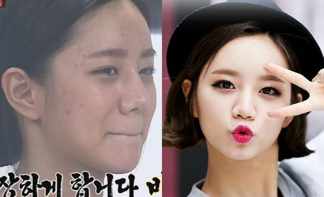 Makeup quá nhiều, loạt idol Hàn cũng khốn khổ vì mụn nhọt tùm lum - ảnh 7