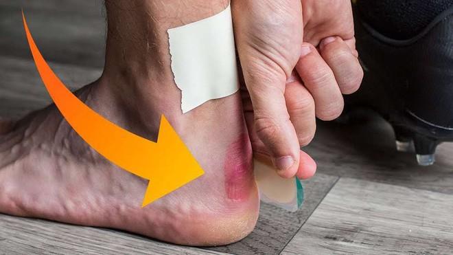 Cẩn thận với 6 dấu hiệu khác thường ở bàn chân đang ngầm cảnh báo bệnh - ảnh 1