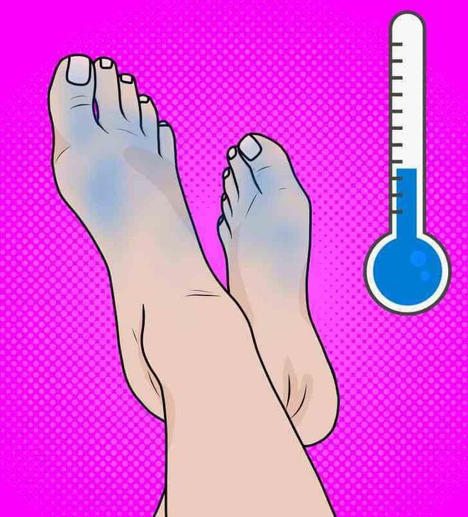 Cẩn thận với 6 dấu hiệu khác thường ở bàn chân đang ngầm cảnh báo bệnh - ảnh 2