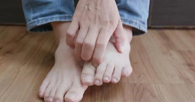 Cẩn thận với 6 dấu hiệu khác thường ở bàn chân đang ngầm cảnh báo bệnh - ảnh 4