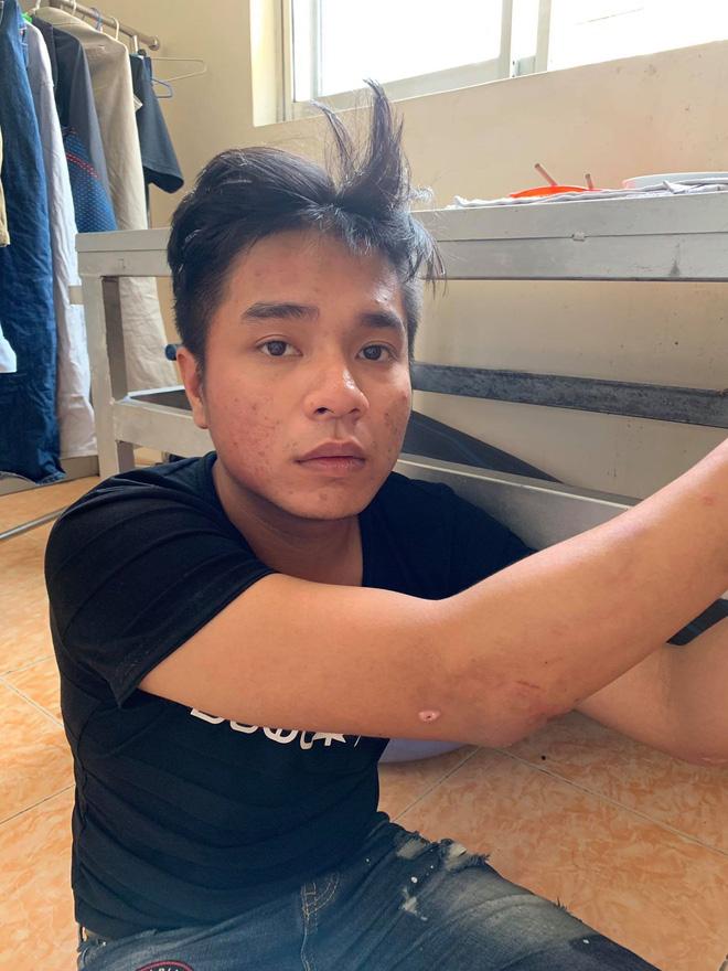 Bắt băng nhóm cướp giật giỏ xách, kéo lê người phụ nữ mang thai ở Sài Gòn - ảnh 1