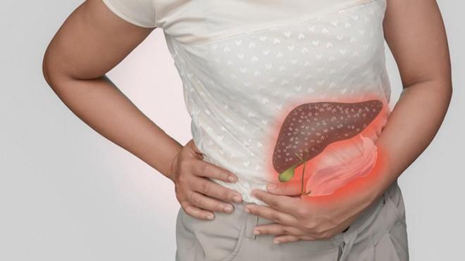 Người mắc bệnh máu nhiễm mỡ thường dễ gặp phải những biến chứng gì? - ảnh 2